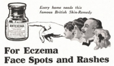 Excema Treatment Advert